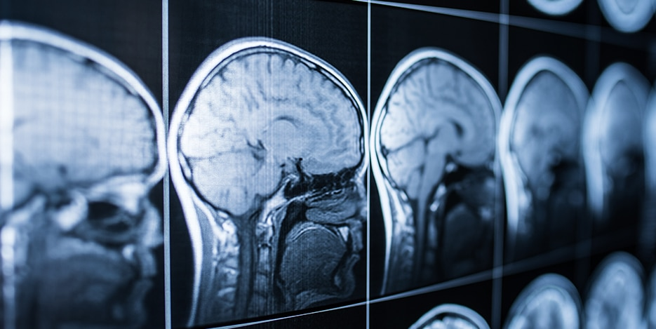 Hartford Traumatic Brain Injury Attorneys